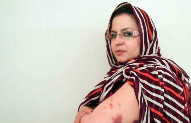 Sahara occidental : Tentative de liquidation physique de la militante sahraouie Sultana Khaya